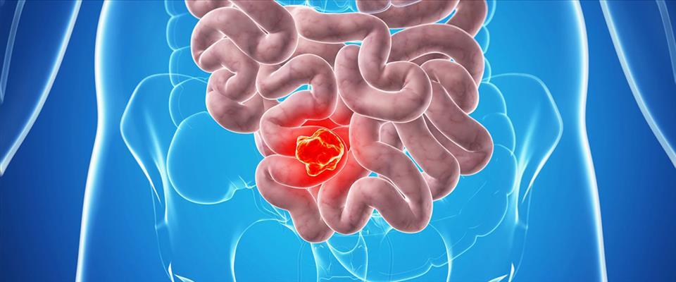 سرطان روده بزرگ را زود درمان کنید